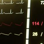 Herzfrequenzmonitor